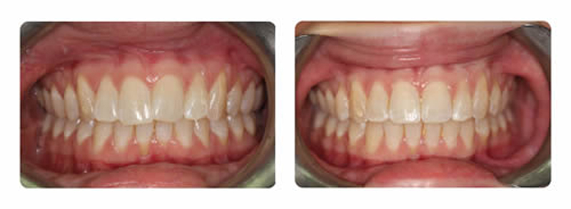 Inman Aligner Before After Wimbledon Dental